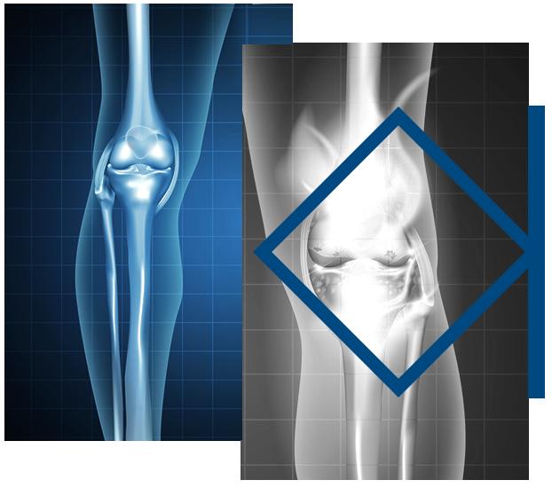 osteoarthritida-photo