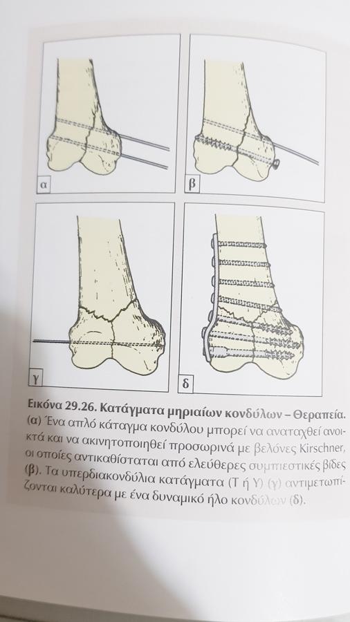 Κατάγματα Μηριαίου - xeirourgos-orthopedikos.gr