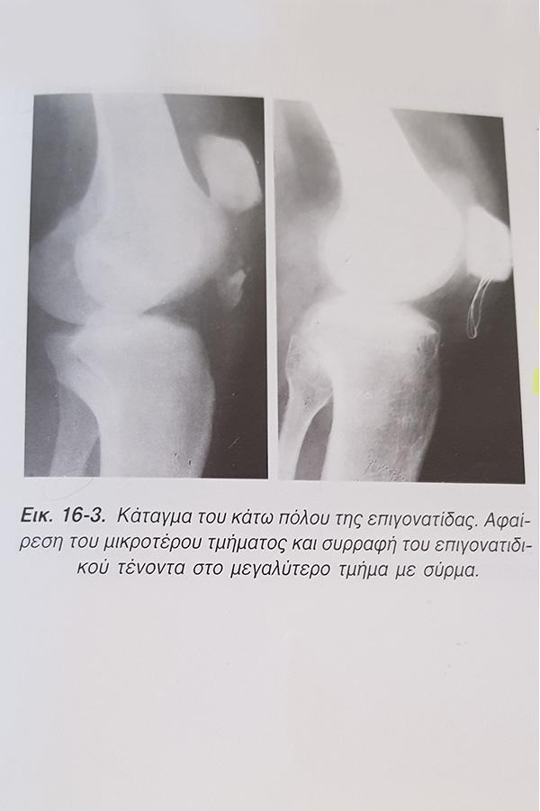 Κατάγματα Επιγονατίδας - Κατάγματα Μηριαίου - https://xeirourgos-orthopedikos.gr/