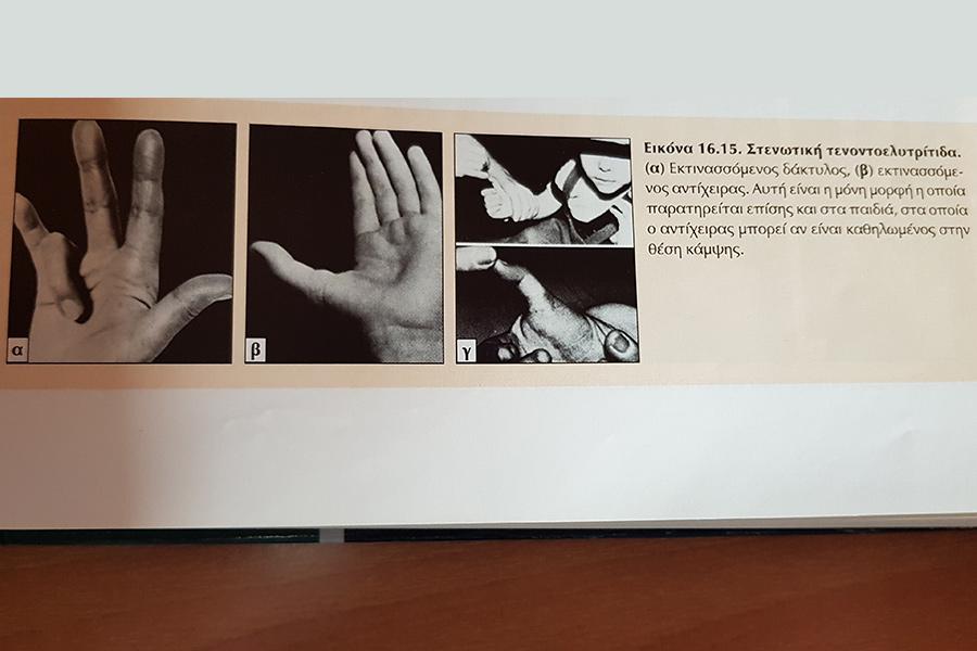 Χειρ. Θεραπεία Εκτινασσόμενου Δακτύλου