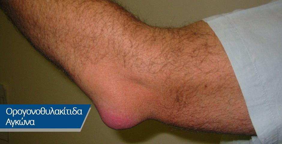 Ορογονοθυλακίτιδα Αγκώνα